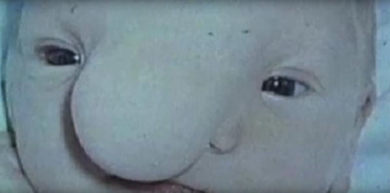 «Уродливый» младенец превратился в успешного и счастливого мужчину