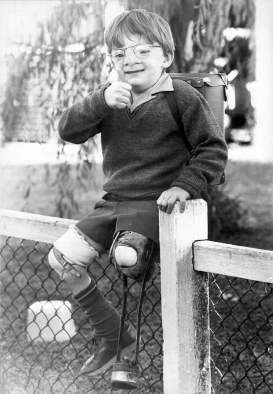 """""""Уродливый"""" младенец превратился в успешного и счастливого мужчину"""