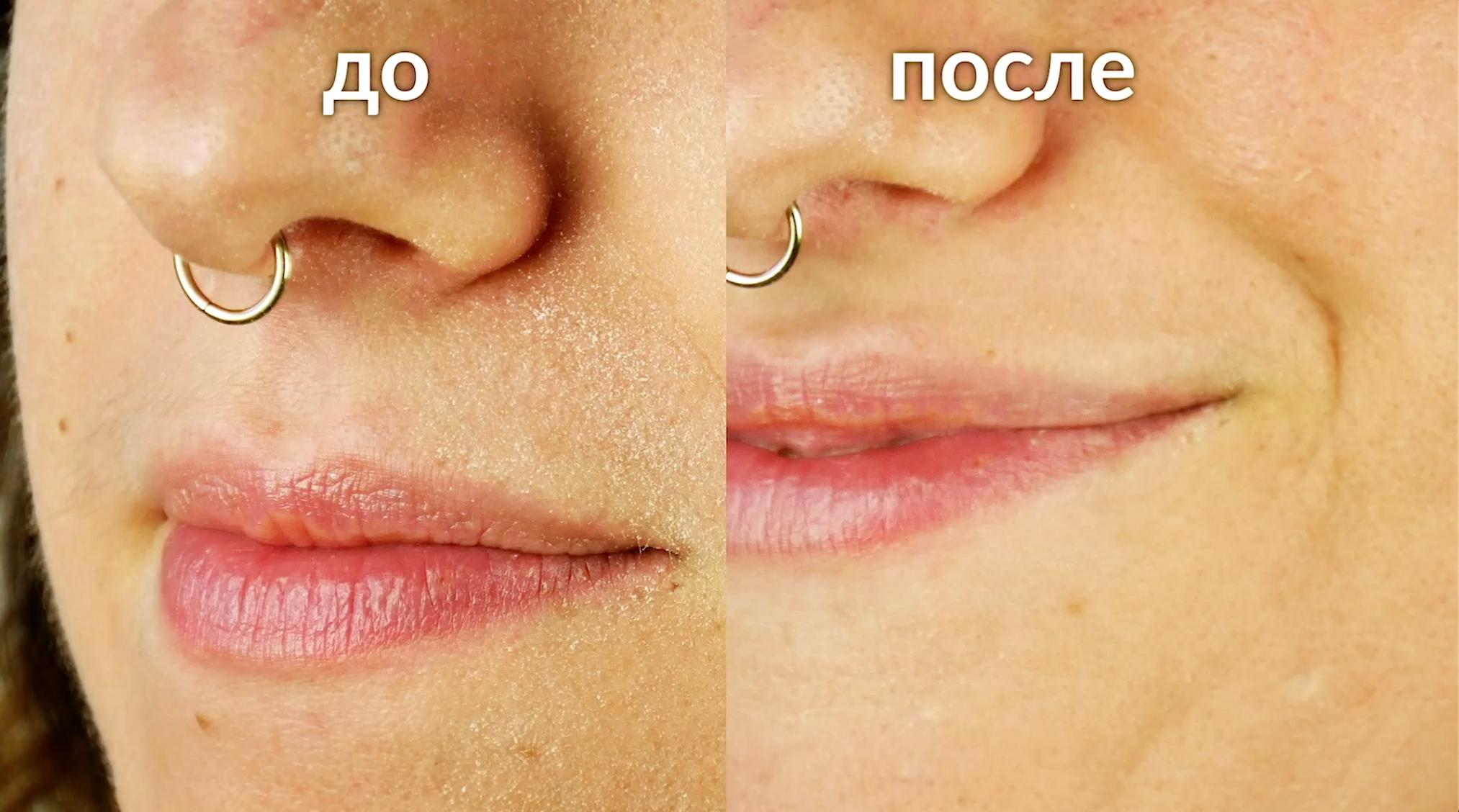 сравнение до и после
